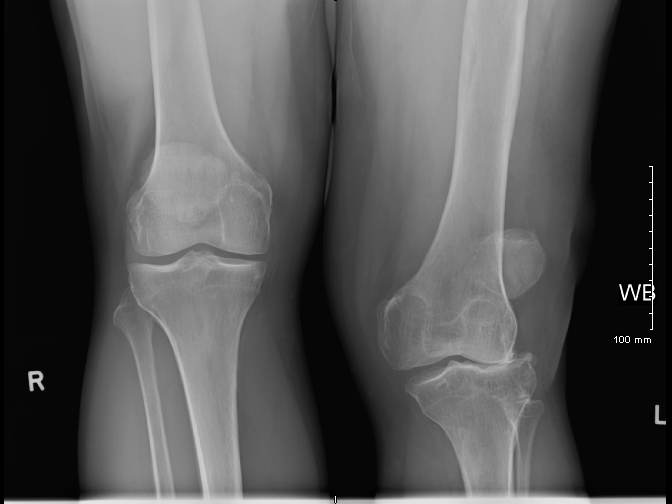 Ankota Home Care blog - knee X-Ray